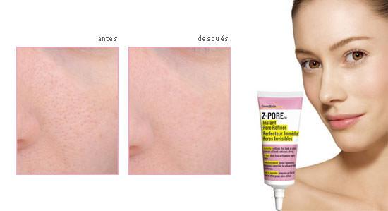 efectos del antes y después de usar Z-Pore