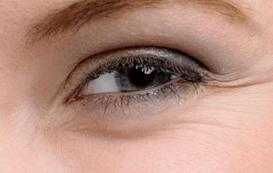 tipos de arrugas del ojo