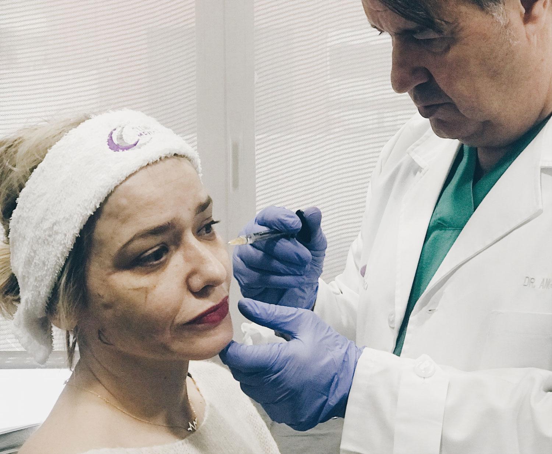 Clinica Menorca tratamiento de hilos tensores